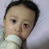 Чим лікувати ячмінь на оці?