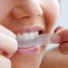 Чим можна відбілити зуби?