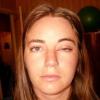Що робити, якщо опух очей?