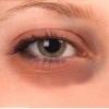 Як швидко прибрати синець на обличчі або тілі