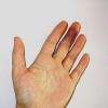 Як лікувати забій пальця?