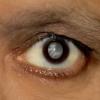 Катаракта - що це таке? Ознаки, стадії і симптоми катаракти