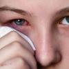 Коньюктивіт: лікування, види і симптоми захворювання