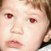 Чому очі червоні?