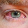 Чому червоніють очі?