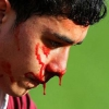 Сонник: кров з носа - до чого б це