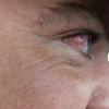Запалення очі: причини і лікування