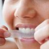Чи шкідливо відбілювання зубів?